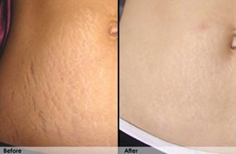 Revitol Stretch Mark Cream Reviews Skin Care Product Reviews
